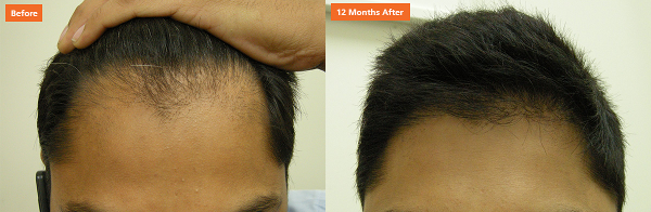 Male hair transplant results at Norwood Day Surgery