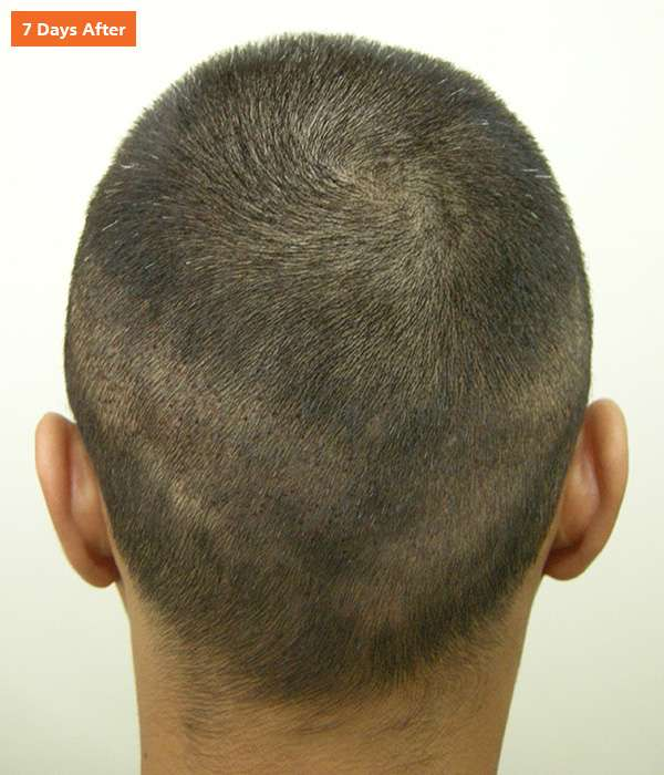 Male-FUE-500-03-7-Days-After