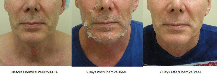 Chemical Peel Process at Norwood Day Surgery