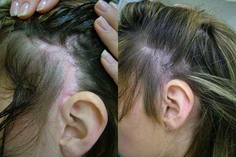 hair-transplants-02