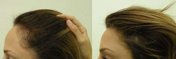 Hairline Lowering - Before and After