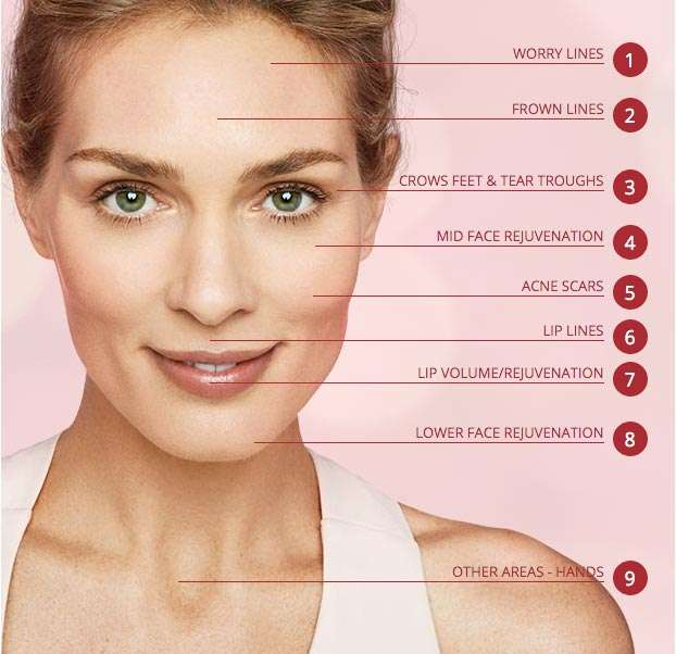 injected-filler-locations