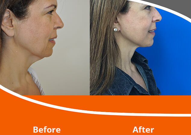 Face Lift Adelaide | Norwood Day Surgery